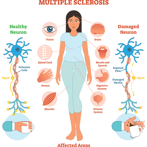 التصلب المتعدد Multiple sclerosis