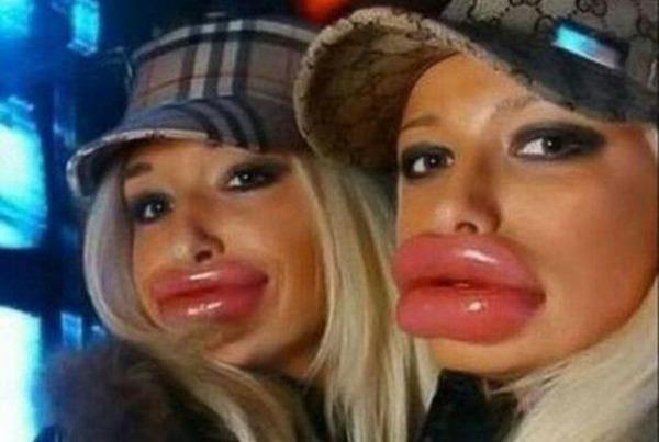Тебе нравится когда у девушек накаченные губы