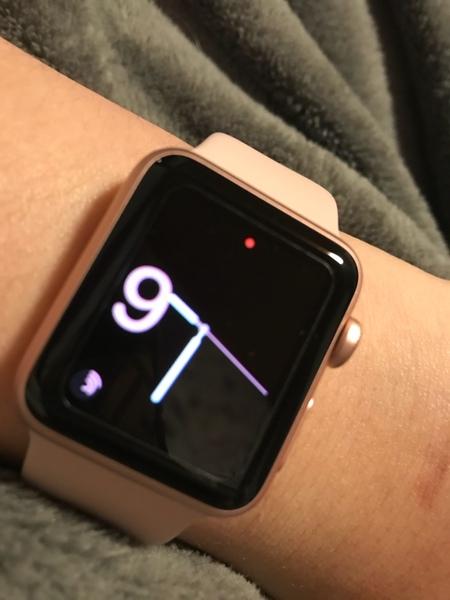 Würdest du gerne die Apple Watch haben