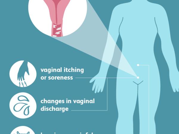 Vaginal Yeast Infection الاخماج المهبلية