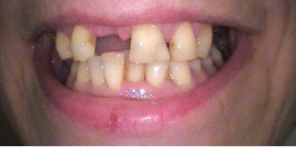 Pap of your Teeth