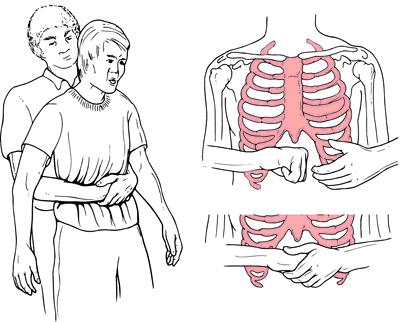 طريقة اسعاف شخص اختنق بعالق  اقفل مجرى التنفس