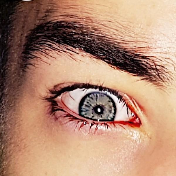 Augenbild