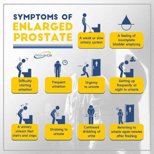مابعد الاربعين للرجال مهم جدا مراقبة البروستاتا