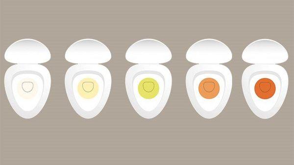 بماذا يخبرك لون البولSigns of changing urine on your health
